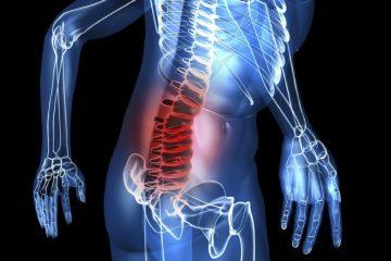 Comprendre l'hernie discale pour mieux la traiter